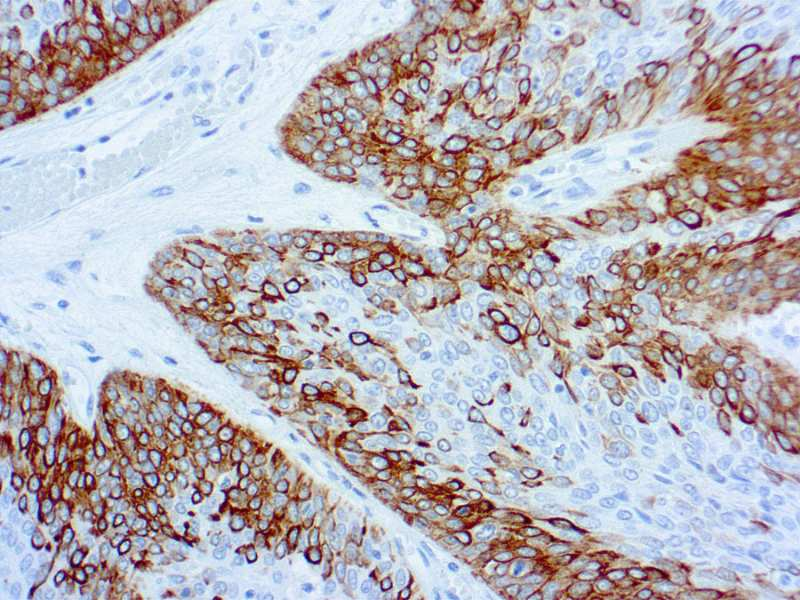 K Antigen Cytokeratin 14 | Diagn...